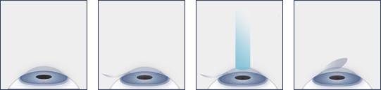 Chart Illustrating the LASIK Eye Surgery Process